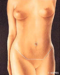 Illustration 5: In partial abdominoplasty, the skin is separated only between the incision line and the navel. This skin flap is stretched down, the excess is removed, and the flap is stitched back into place.